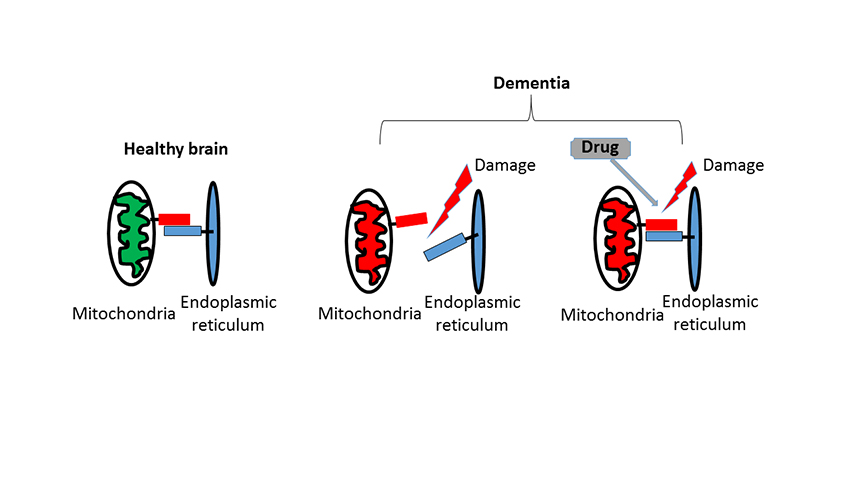 Cartoon drawing detailing how bonds between mitochondria and endoplasmic reticulum become broken in dementia but could be repaired using this drug intervention