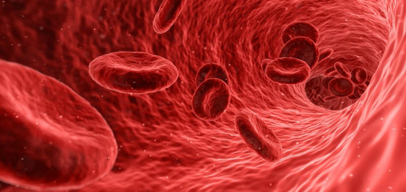 Vascular dementia and red blood cells