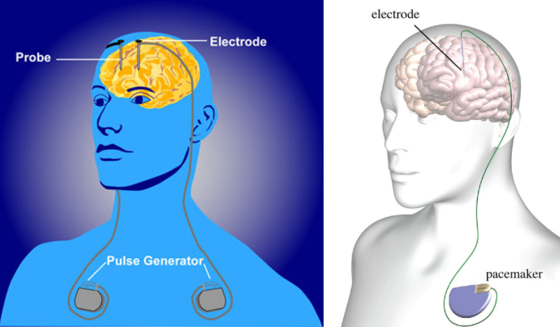 Science behind the headlines: Brain 'pacemaker' for ...